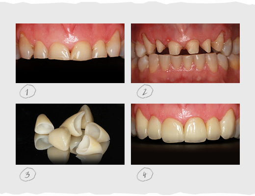 Tooth Wear Attrition Erosion Abrasion CEREC Omnicam and Enamic to the Rescue!